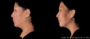 Evoke Before & After-4