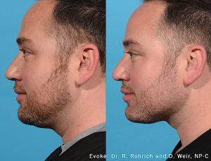 Evoke neckline before-after Dr. Rohrich